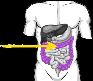 LI diagram