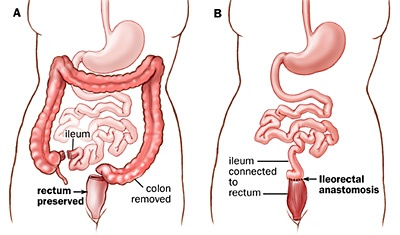 Total Colectomy